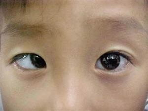 Community Eye Health Journal » Understanding, detecting ...