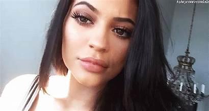 Kylie Jenner Lip Shocked Lips Enormous Fillers