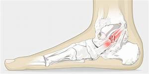 Sprained Ankle - The Complete Injury Guide