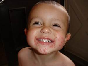 Hand, foot and mouth disease. Causes, symptoms, treatment ...