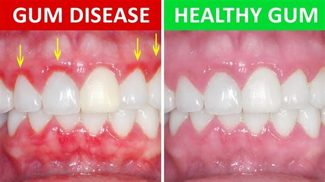 how to get gum how to get rid of gingivitis at home gum disease youtube