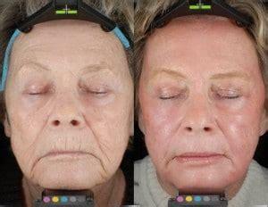 laser fractional skin resurfacing silk touch med spa