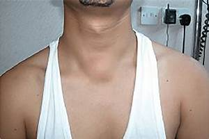 The Appearance Of Suprasternal Midline Neck Lump Pre