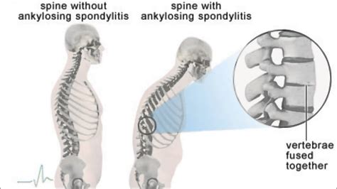 Mantra Ayurveda Treats Muscular Back Paincervical