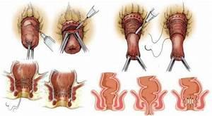 Геморрой и выпадение кишки