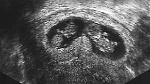 Ssw Woche Berechnen : zwillinge in der 11 woche ssw10 seite 3 ~ Themetempest.com Abrechnung