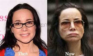 Janeane Garofalo Plastic Surgery Before And After Images ...