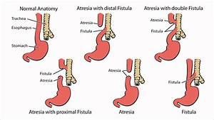 Esophageal Atresia - What Is Esophageal Atresia