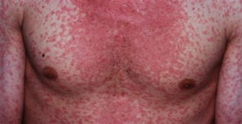 New Measles Alert After Infected Person Visits Perth