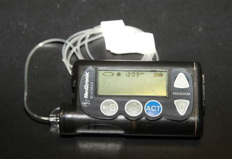 insulin pumps give kids  control  type  diabetes