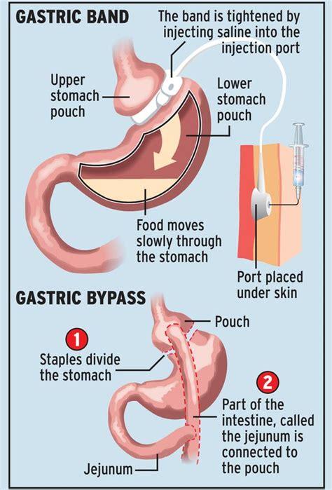 Gastric Bypass Pre Op Diet Nhs Uk
