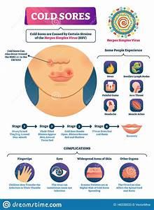 Cold Sores Vector Illustration  Medical Labeled Herpes
