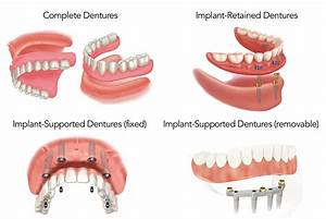 Treatment Options for the Edentulous Patient (including ...