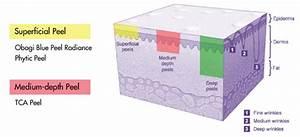 Skin Peels For Men And Women