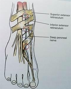 wrist pain relief medicine