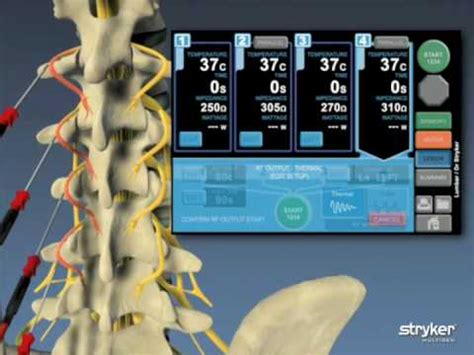 Multi-Gen Monopolar Procedure Animation - YouTube