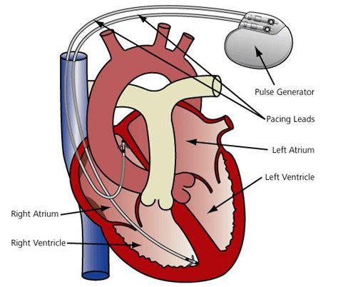 home the heart rhythm bradyarrhythmias apdic
