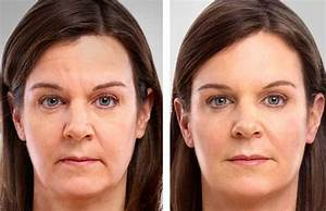 fluorouracil cream before and after Fluorouracil Topical