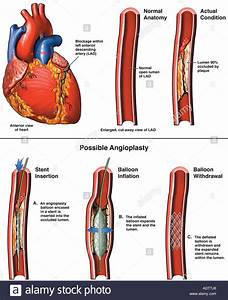 Coronary Artery Stenosis With Angioplasty Stock Photo