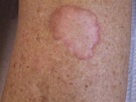 Pictures, Types, Causes, Treatment