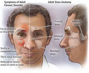 Adult Throat Infection Pictures Sinuses