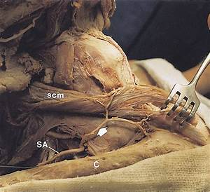The Blood Supply Of The Sternocleidomastoid Muscle And Its
