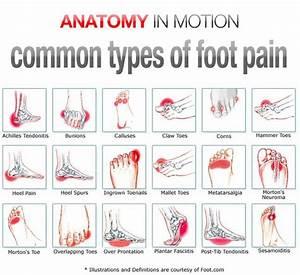 Foot Pain Instep Symptoms  Ball Of Foot Pain