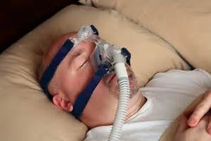 sleep-apnea Sleep Apnea