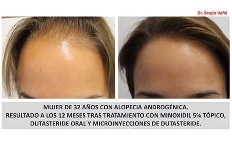 Alopecia Androgénica Femenina Postmenopausica - Mujeres