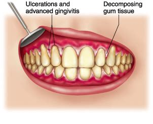trench mouth  symptoms treatment trench mouth