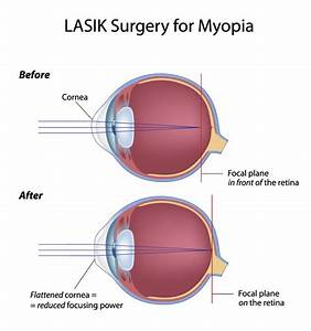 Lasik Eye Surgery For Vision Correction At Fort Worth Eye