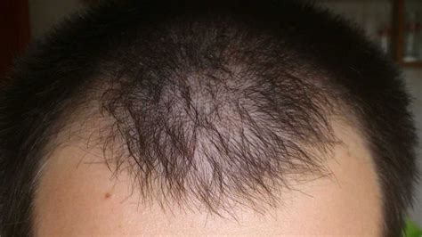 Rogaine Hair Regrowth Reviews