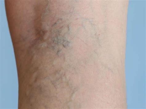 Varicose Eczema Or Stasis Dermatitis Symptoms Causes