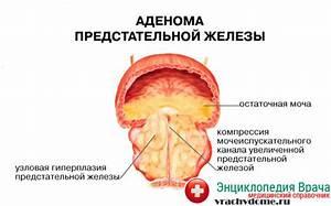 Гентамицин от простатита отзывы