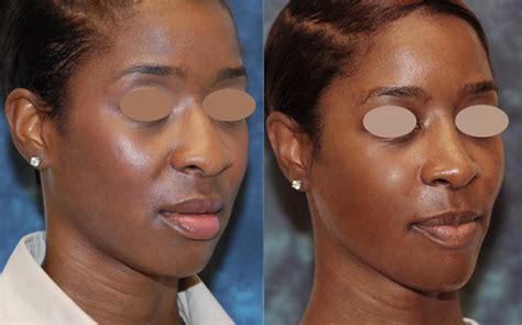 african american rhinoplasty  females