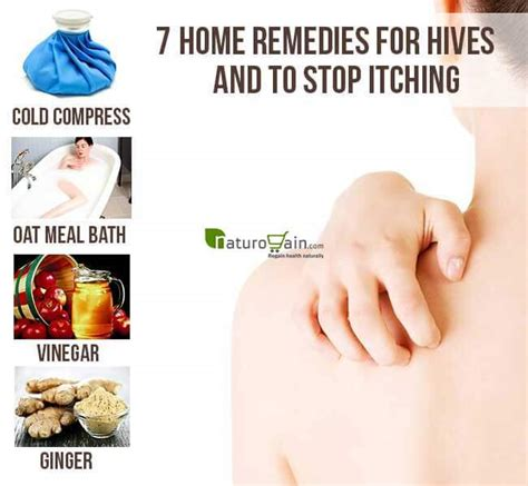 7 Home Remedies For Hives And To Stop Itching
