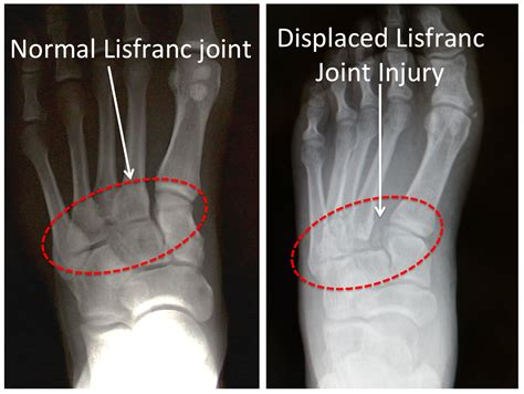 lisfranc injury ray vs normal ligament sprain injured sprained ankle fracture foot joint dislocation figure midfoot radiology surgery treatment pain