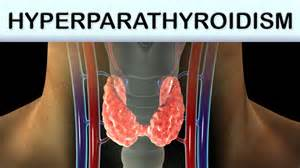 What You Need To Know About Hyperparathyroidism! - GetDoc Says Hyperparathyroidism