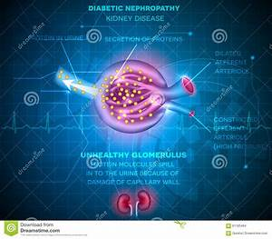 Diabetic Nephropathy  Kidney Disease Cartoon Vector