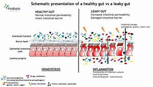 IS YOUR GUT LEAKY? - ProBiotic DIGEST