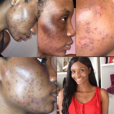 How To Remove Pimples Acne And Black Spots Naturally In