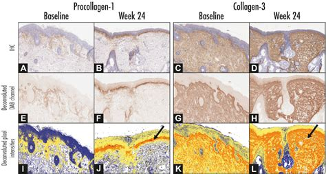 [PDF] Adapalene 0.3% Gel Shows Efficacy for the Treatment ...