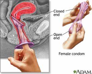 About Female Condoms | Demand Generation I-Kit for ...