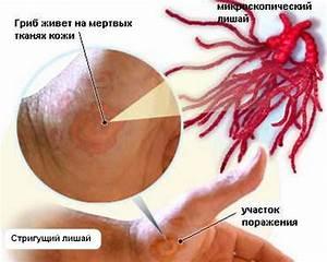Чем отличается стригущий лишай от псориаза