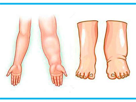 vasi linfatici gambe linfedema sos gambe