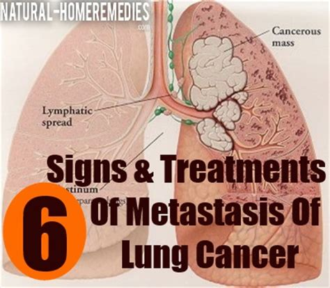 6 Signs And Treatments Of Metastasis Of Lung Cancer  Ways. Imej Stickers. Superman Batman Logo. Transformer Logo. Textbook Banners. Individual Lettering. Insulin Shock Signs. 25 March Signs Of Stroke. Graphic Signs