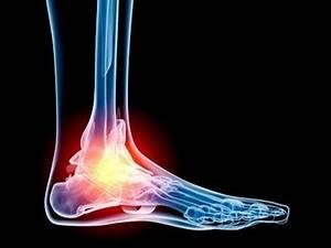 Лекарство от артроза и артрита стопы ног
