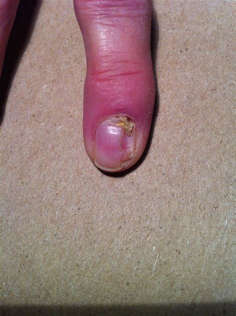 sore nail beds i an open sore and scab in the nail bed of my forefinger