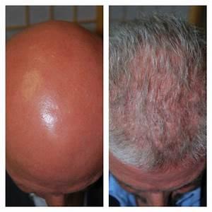 Alopecia Areata Totale Completa Ricrescita Dei Capelli