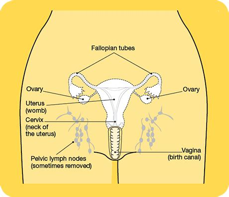 Surgery for Cancer of the Uterus | Cancer Council NSW